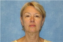 Facelift Before Photo by George John Alexander, MD, FACS; Las Vegas, NV - Case 31301