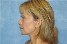 Facelift After Photo by George John Alexander, MD, FACS; Las Vegas, NV - Case 31302