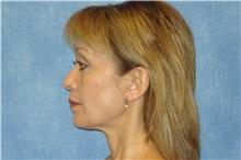 Facelift Before Photo by George John Alexander, MD, FACS; Las Vegas, NV - Case 31302
