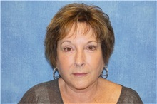 Facelift After Photo by George John Alexander, MD, FACS; Las Vegas, NV - Case 31311