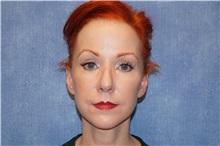 Facelift After Photo by George John Alexander, MD, FACS; Las Vegas, NV - Case 31312
