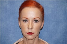 Facelift Before Photo by George John Alexander, MD, FACS; Las Vegas, NV - Case 31312