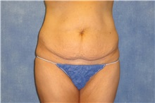 Tummy Tuck Before Photo by George John Alexander, MD, FACS; Las Vegas, NV - Case 32111