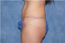 Tummy Tuck After Photo by George John Alexander, MD, FACS; Las Vegas, NV - Case 32111