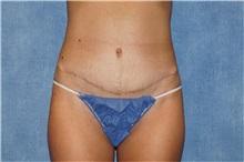 Tummy Tuck After Photo by George John Alexander, MD, FACS; Las Vegas, NV - Case 32112