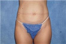 Tummy Tuck Before Photo by George John Alexander, MD, FACS; Las Vegas, NV - Case 32112