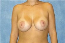 Breast Augmentation After Photo by George John Alexander, MD, FACS; Las Vegas, NV - Case 32121