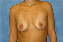 Breast Augmentation Before Photo by George John Alexander, MD, FACS; Las Vegas, NV - Case 32121