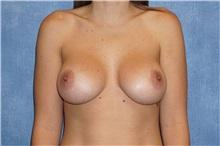Breast Augmentation After Photo by George John Alexander, MD, FACS; Las Vegas, NV - Case 32122