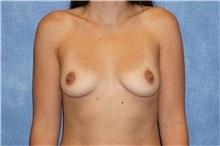 Breast Augmentation Before Photo by George John Alexander, MD, FACS; Las Vegas, NV - Case 32122