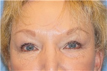 Brow Lift After Photo by George John Alexander, MD, FACS; Las Vegas, NV - Case 32129