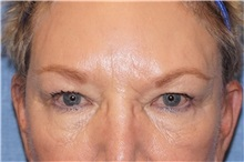 Brow Lift Before Photo by George John Alexander, MD, FACS; Las Vegas, NV - Case 32129