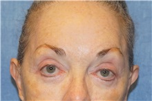 Brow Lift After Photo by George John Alexander, MD, FACS; Las Vegas, NV - Case 32132