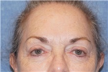 Brow Lift Before Photo by George John Alexander, MD, FACS; Las Vegas, NV - Case 32132