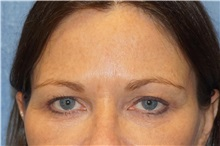 Brow Lift After Photo by George John Alexander, MD, FACS; Las Vegas, NV - Case 32134
