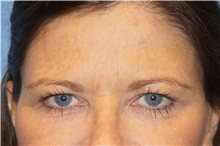 Brow Lift Before Photo by George John Alexander, MD, FACS; Las Vegas, NV - Case 32134