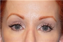 Eyelid Surgery After Photo by George John Alexander, MD, FACS; Las Vegas, NV - Case 32136