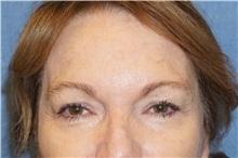 Eyelid Surgery Before Photo by George John Alexander, MD, FACS; Las Vegas, NV - Case 32138