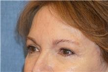 Eyelid Surgery After Photo by George John Alexander, MD, FACS; Las Vegas, NV - Case 32138