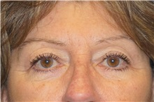 Eyelid Surgery After Photo by George John Alexander, MD, FACS; Las Vegas, NV - Case 32139