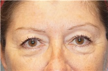 Eyelid Surgery Before Photo by George John Alexander, MD, FACS; Las Vegas, NV - Case 32139