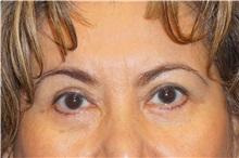Eyelid Surgery After Photo by George John Alexander, MD, FACS; Las Vegas, NV - Case 32140