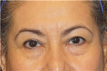 Eyelid Surgery Before Photo by George John Alexander, MD, FACS; Las Vegas, NV - Case 32140