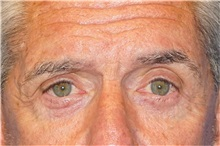 Eyelid Surgery After Photo by George John Alexander, MD, FACS; Las Vegas, NV - Case 32141