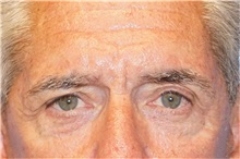 Eyelid Surgery Before Photo by George John Alexander, MD, FACS; Las Vegas, NV - Case 32141