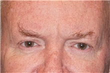 Eyelid Surgery After Photo by George John Alexander, MD, FACS; Las Vegas, NV - Case 32142