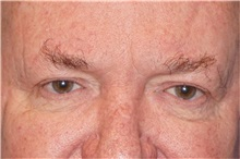 Eyelid Surgery Before Photo by George John Alexander, MD, FACS; Las Vegas, NV - Case 32142