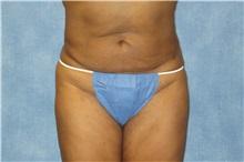 Liposuction After Photo by George John Alexander, MD, FACS; Las Vegas, NV - Case 32298