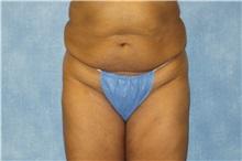 Liposuction Before Photo by George John Alexander, MD, FACS; Las Vegas, NV - Case 32298