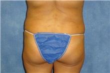 Liposuction Before Photo by George John Alexander, MD, FACS; Las Vegas, NV - Case 32299
