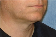 Liposuction After Photo by George John Alexander, MD, FACS; Las Vegas, NV - Case 32303