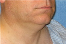 Liposuction Before Photo by George John Alexander, MD, FACS; Las Vegas, NV - Case 32303