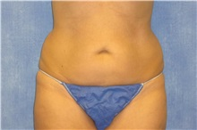Liposuction Before Photo by George John Alexander, MD, FACS; Las Vegas, NV - Case 32304