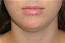 Liposuction Before Photo by George John Alexander, MD, FACS; Las Vegas, NV - Case 32311
