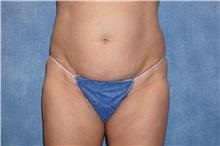 Liposuction Before Photo by George John Alexander, MD, FACS; Las Vegas, NV - Case 32312