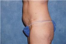 Liposuction After Photo by George John Alexander, MD, FACS; Las Vegas, NV - Case 32312