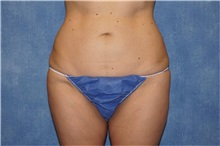 Liposuction After Photo by George John Alexander, MD, FACS; Las Vegas, NV - Case 32313