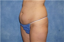 Liposuction Before Photo by George John Alexander, MD, FACS; Las Vegas, NV - Case 32313