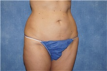 Liposuction After Photo by George John Alexander, MD, FACS; Las Vegas, NV - Case 32313