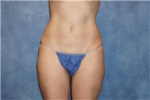 Liposuction After Photo by George John Alexander, MD, FACS; Las Vegas, NV - Case 32315