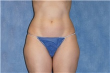Liposuction Before Photo by George John Alexander, MD, FACS; Las Vegas, NV - Case 32315