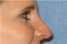 Rhinoplasty After Photo by George John Alexander, MD, FACS; Las Vegas, NV - Case 32318