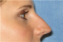 Rhinoplasty Before Photo by George John Alexander, MD, FACS; Las Vegas, NV - Case 32318