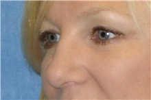 Rhinoplasty After Photo by George John Alexander, MD, FACS; Las Vegas, NV - Case 32324