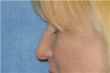 Rhinoplasty Before Photo by George John Alexander, MD, FACS; Las Vegas, NV - Case 32324