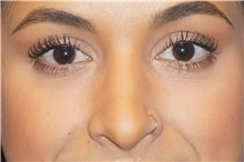 Rhinoplasty After Photo by George John Alexander, MD, FACS; Las Vegas, NV - Case 32327
